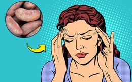 8 thực phẩm đẩy lùi chứng đau nửa đầu: Ngon bổ rẻ lại chữa được bệnh, tội gì không thử?