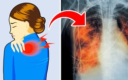 5 dấu hiệu tưởng đơn giản nhưng báo hiệu phổi đang tổn thương nghiêm trọng: Phát hiện sớm có thể cứu mạng nhiều người
