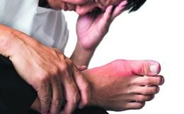 Cứ 4 người bị bệnh gout lại có 1-2 người trong độ tuổi 30, cảnh báo 5 thói quen hàng ngày khiến bạn mắc bệnh lúc nào không biết