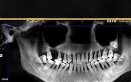 Đang đánh răng thì đột nhiên 1 chiếc răng rơi xuống, cô gái 28 tuổi phải nhổ bỏ hàm trên vì bệnh nguy hiểm