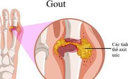 3 dấu hiệu của bệnh gút bạn cần biết sớm: Làm ngay 4 cách giảm đau hiệu quả ngay từ đầu