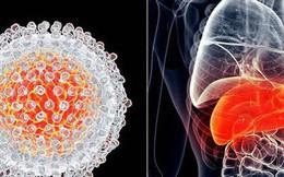 """4 """"thủ phạm"""" khiến ung thư gan ở Việt Nam cao: Nguyên nhân thứ 2 ngày càng nhiều người mắc"""