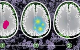 Cẩn thận với những dấu hiệu cảnh báo sớm bệnh ung thư não mà bạn chẳng ngờ đến