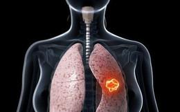 Giám đốc BV Ung bướu: Ung thư phổi khó phát hiện, nhưng có dấu hiệu này thì đến viện ngay