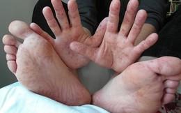 Cha mẹ cảnh giác với 3 dấu hiệu cảnh báo trẻ bị tay chân miệng thể nặng, ảnh hưởng đến thần kinh