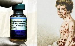 Cứ thoải mái chối bỏ, nhưng 6 căn bệnh này sẽ khiến nhân loại khổ sở hơn rất nhiều nếu vaccine không xuất hiện