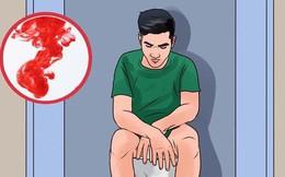 3 dấu hiệu mà nhiều người thường nhầm lẫn giữa bệnh ung thư ruột và bệnh trĩ