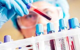 Chuyên gia lý giải vì sao ung thư gan vọt lên vị trí đầu bảng