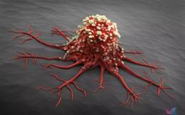 """Ai cũng sợ mắc ung thư nhưng tế bào ung thư lại rất """"sợ"""" nếu bạn đều đặn làm 7 việc này mỗi ngày"""