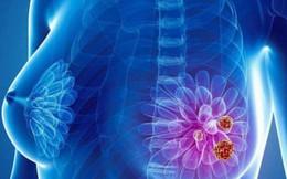 Bác sĩ bệnh viện K lưu ý 2 dấu hiệu nguy hiểm cần khám sàng lọc ung thư vú ngay kẻo trễ