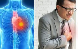 6 dấu hiệu cảnh báo cơn đau tim trước 1 tháng: Đừng chủ quan kẻo hối chẳng kịp!