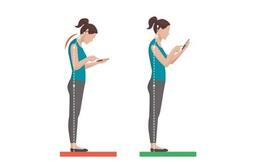 Tự nhiên đau cổ, vai: Bạn có đang dùng điện thoại thông minh không?