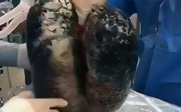 Nhìn hình ảnh 2 lá phổi đen kịt này chắc chắn những người nghiện thuốc lá nặng cũng muốn từ bỏ ngay lập tức