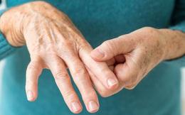 Bỗng dưng thấy tay, chân xuất hiện những dấu hiệu này chứng tỏ lượng đường trong máu bạn đã tăng cao, cần phải được chăm sóc khẩn cấp