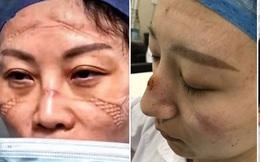 Gương mặt đầy vết hằn do khẩu trang, kính bảo hộ: Các y tá, bác sĩ ở Vũ Hán đã đánh cược cả tính mạng để chống lại đại dịch corona