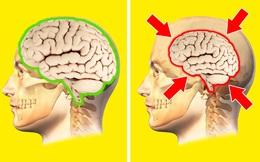 Não bộ sẽ co lại nếu tình trạng căng thẳng xảy ra thường xuyên, may mắn thay, đây là chìa khóa dành cho bạn!