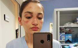 Thảm cảnh với y bác sĩ Vũ Hán tái diễn ở Italy: Nhân viên y tế tím mặt vì đeo khẩu trang, ngủ gục trên bàn vì kiệt sức