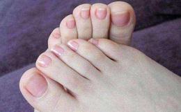 Người sống thọ thường có chung 3 dấu hiệu nhỏ này trên bàn chân: Hãy kiểm tra xem mình có đủ hay không!