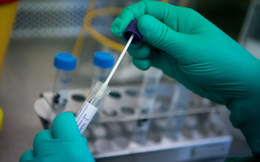 Bộ Y tế cấp phép sản xuất 2 sinh phẩm xét nghiệm Covid-19