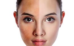 """Da mặt bỗng chuyển đỏ hoặc vàng bất thường nghĩa là nội tạng của bạn đang """"cầu cứu"""""""