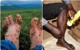 Nghề câu... muỗi kỳ lạ: Những người lấy chính cặp giò làm mồi nhử, ai cũng bất ngờ khi phát hiện lý do cao đẹp phía sau