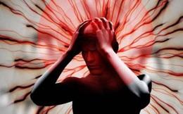 Nhức đầu kéo dài, tái đi tái lại nhưng đi khám lại không sao: Chuyên gia thần kinh trả lời khi nào bạn cần gặp bác sĩ gấp vì căn bệnh rất nhiều người mắc này