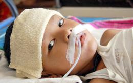 Bắt đầu vào mùa viêm não Nhật Bản, cha mẹ cần phân biệt triệu chứng sốt do viêm não Nhật Bản và bệnh lý khác để phòng bệnh cho con