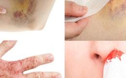 Bác sĩ BV K: 9 dấu hiệu ung thư máu ở trẻ, chỉ gặp 1 dấu hiệu đã cần chú ý