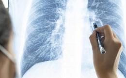 Tại sao không hút thuốc lá vẫn mắc ung thư phổi? Hóa ra đó là một dạng ung thư khác