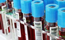 Hy vọng mới: Xét nghiệm máu giúp phát hiện ung thư sớm nhiều năm trước khi có triệu chứng
