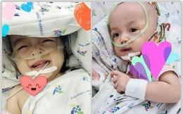 Hai chị em Trúc Nhi - Diệu Nhi đã cai máy thở, cười tươi khi được bố mẹ vào thăm