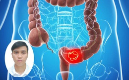 Bác sĩ chuyên khoa bệnh viện K: Sau 50 tuổi, nguy cơ ung thư đại tràng tăng rõ rệt, xét nghiệm máu chỉ là bước đệm giúp tìm manh mối để sàng lọc bệnh