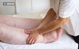 """Bệnh thận không """"tấn công"""" đột ngột, khi có 4 dấu hiệu này ở tay chân là bạn phải đi khám"""