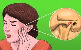 """5 cơn đau """"khó hiểu"""" khiến bạn dễ nhầm lẫn với đau răng nhưng có thể đó là dấu hiệu của những căn bệnh khó chữa"""