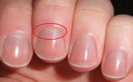 4 dấu hiệu lạ trên tay có thể là dấu hiệu cảnh báo thận của bạn có thể đang suy yếu, cần theo dõi thêm để bảo vệ sức khỏe