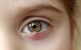 """8 dấu hiệu cảnh báo bệnh tật được """"khắc"""" rất rõ trên mắt: Ai cũng cần đọc để đối chiếu với sức khỏe bản thân"""