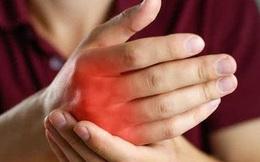 Lòng bàn tay nóng bất thường vào mùa hè, cảnh giác 6 loại bệnh nguy hiểm
