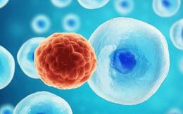 Kỹ thuật siêu âm mới có thể tiêu diệt tế bào ung thư dựa trên hiệu ứng sóng dừng
