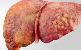 """Chuyên gia ung bướu: """"Bí quyết"""" 1 cần, 2 không, 1 ít """"chặn đứng"""" căn bệnh ung thư nguy hiểm"""