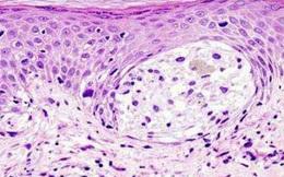 Phát hiện cách bật cơ chế tự hủy ung thư ngay trong cơ thể