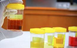 Thấy nước tiểu luôn có màu vàng sẫm: chưa chắc là cảnh báo thận yếu, nguyên nhân có thể do những điều khác