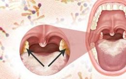 TS Việt tại Mỹ: Bệnh bạch hầu và quá khứ cực kỳ đáng sợ, chỉ có 1 cách phòng bệnh duy nhất