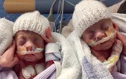 Cặp anh em sinh đôi sinh non từng chỉ 'nhỏ như chuột' nhưng vẫn sống sót khiến các bác sĩ phải ngỡ ngàng giờ ra sao?