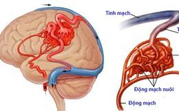 """Đột quỵ não không chừa 1 ai: 2/6 thủ phạm gây bệnh là """"thú vui độc hại"""" của nhiều người Việt"""
