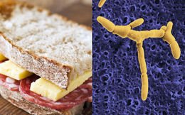 Bùng phát nhiễm khuẩn listeria gây chết người tại Mỹ: Nghi xuất phát từ món ăn vô cùng quen thuộc