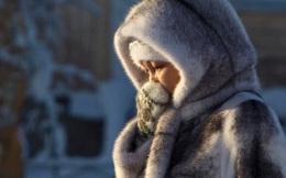 """Bệnh """"sợ gió"""" trong Đông y: Tránh được gió là giảm mắc bệnh, giữ được sức khỏe và tuổi thọ"""