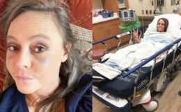 Người phụ nữ này tưởng mình bị sưng mắt do dị ứng nhưng hóa ra đó lại là triệu chứng của bệnh về mắt có liên quan tuyến giáp