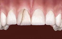 6 dấu hiệu điển hình cảnh báo nguy cơ lão hóa răng sớm mà nhiều người chẳng ngờ đến
