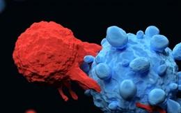 Bị ung thư nên ăn uống như thế nào: BS đưa ra 4 lời khuyên giúp chữa trị hiệu quả hơn