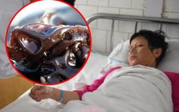 Cả nhà 3 người lần lượt bị ung thư gan do chế biến sai cách loại thực phẩm mà nhiều gia đình tiêu thụ hàng ngày